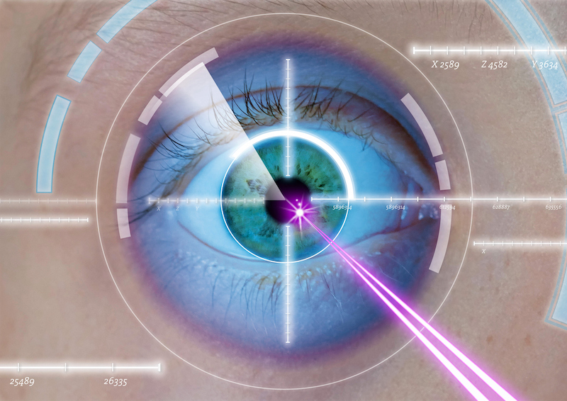 Intervention de correction de la vue au LASIK – action collective nationale contre LASIK MD